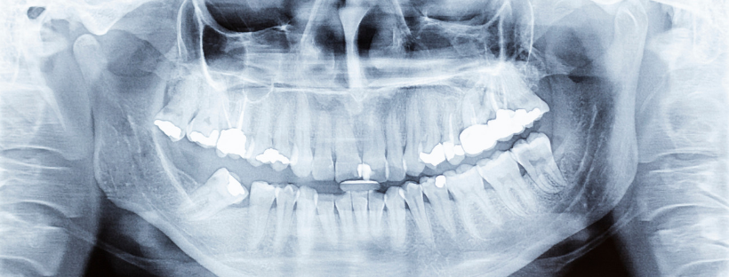 Dental Cone Beam CT Scan, X-Ray